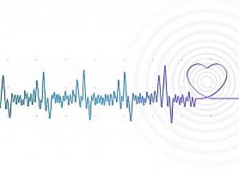 An electrocardiogram